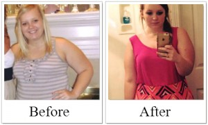 Gastric Sleeve Surgery Success Stories With Before After Photos