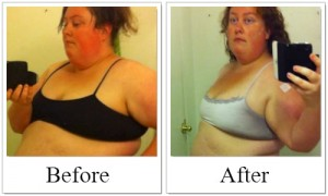Before_After SBS - Savannah, gastric sleeve success