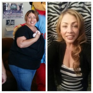 Maria's Gastric Sleeve Before and After