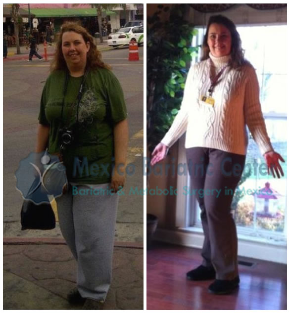 Gastric Bypass Surgery Success