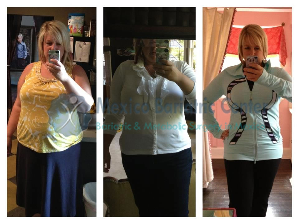 gastric banding success story