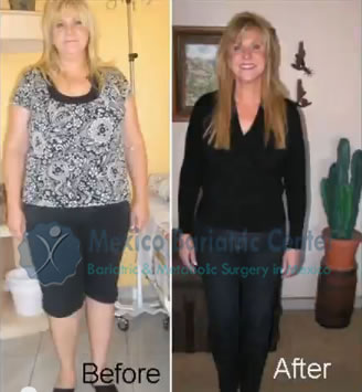 MBC Weight Loss Surgery Before and After, gastric bypass success
